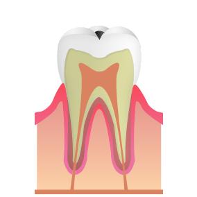 むし歯の状態