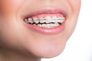 当院の矯正歯科